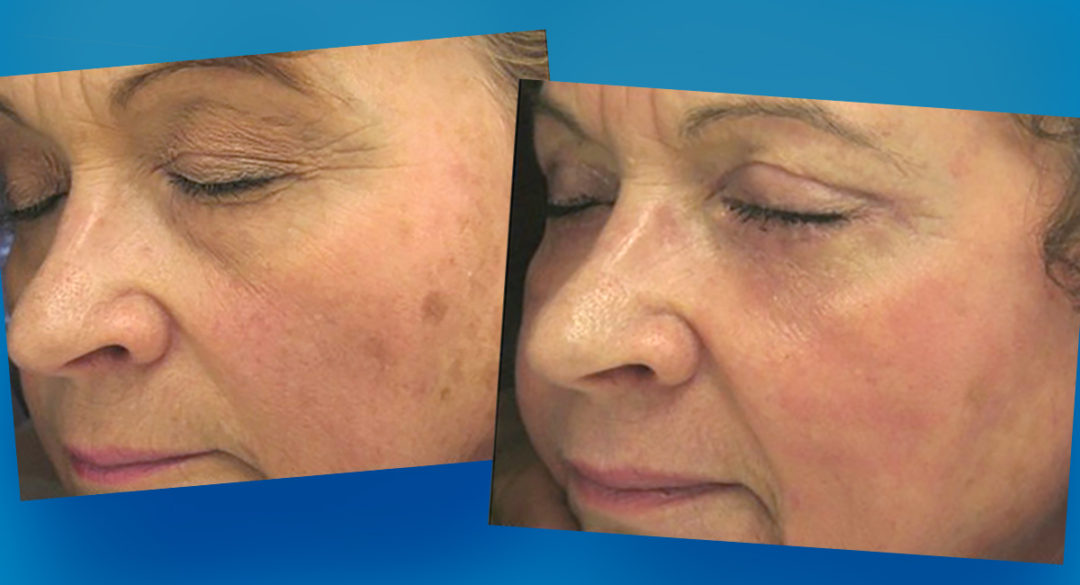 Harley Street Skin Clinic Before and After Banner