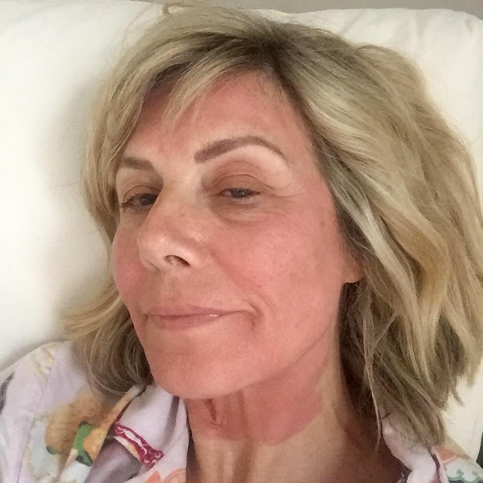Glynis Facial Rejuvenation Treatment