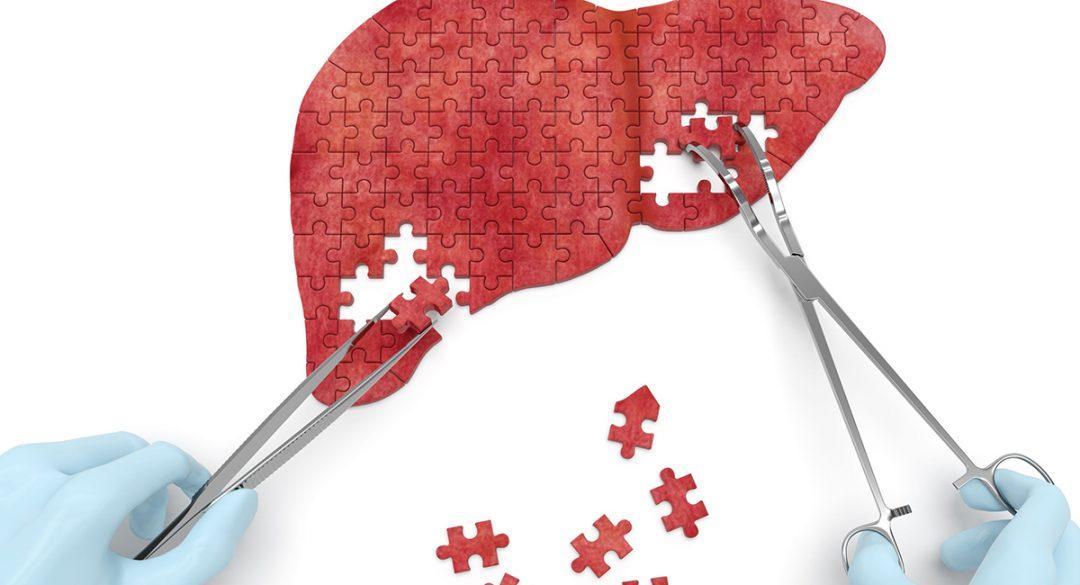 Liver Puzzle
