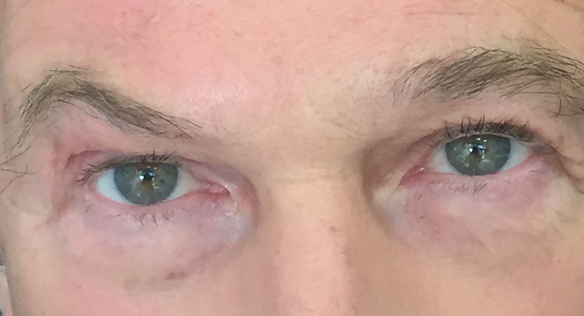 Michael Brandon LVL Lash Lift After